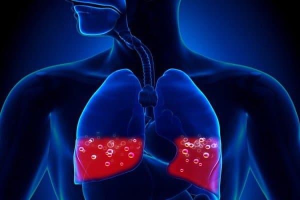 Phù phổi cấp - Cách chữa bệnh ho