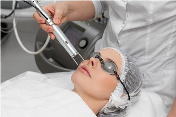 Phương pháp Laser trị nếp nhăn