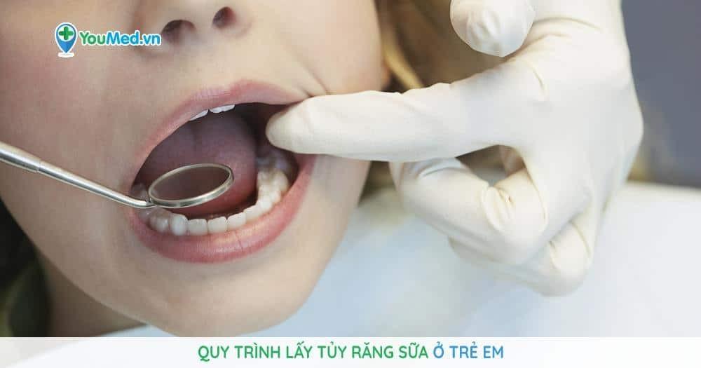 Quy trình lấy tủy răng sữa ở trẻ em