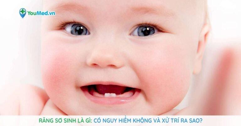 Răng sơ sinh là gì: Có nguy hiểm không và xử trí ra sao?