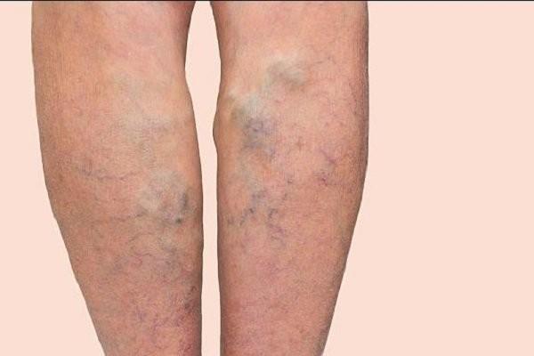 Bắp chân to cơ làm tăng nguy cơ suy tĩnh mạch chi dưới