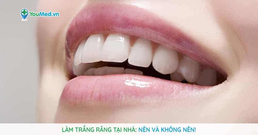 Các phương pháp làm trắng răng tại nhà: Nên và không nên!