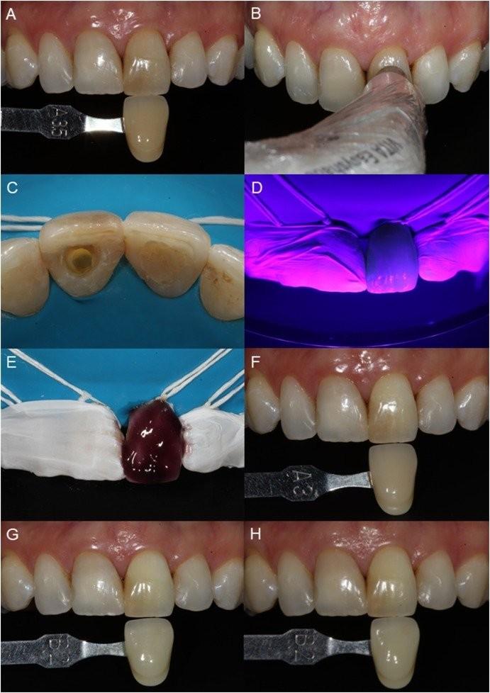 Tẩy trắng răng đã lấy tủy bằng đèn