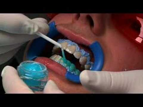 Tẩy trắng răng tại ghế