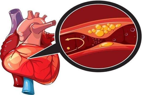 Thiếu máu cục bộ cơ tim cấp tính - Tăng huyết áp ác tính