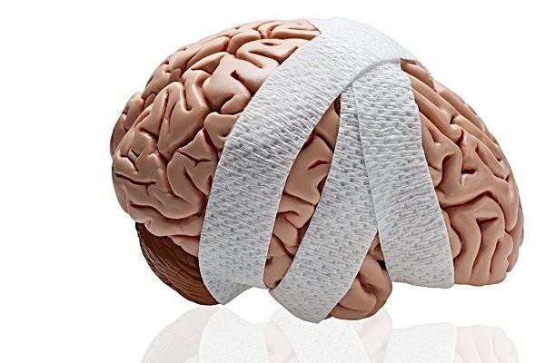 Tổn thương não là nguyên nhân phổ biến gây hội chứng khóa trong