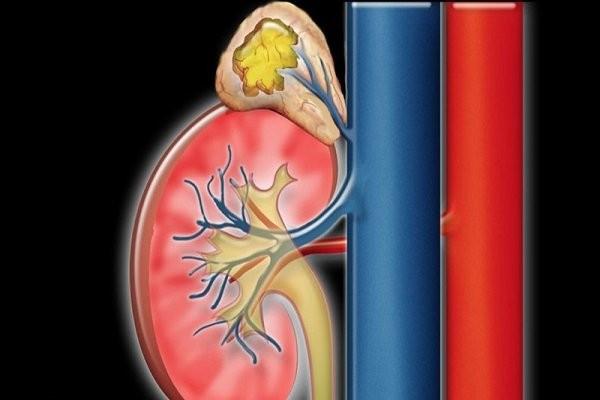 Khối u của tuyến thượng thận có thể dẫn đến huyết áp tăng ác tính