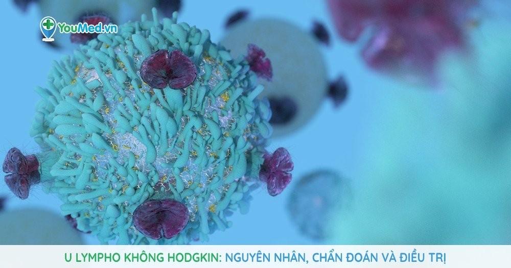 U lympho không Hodgkin: Nguyên nhân, chẩn đoán và điều trị