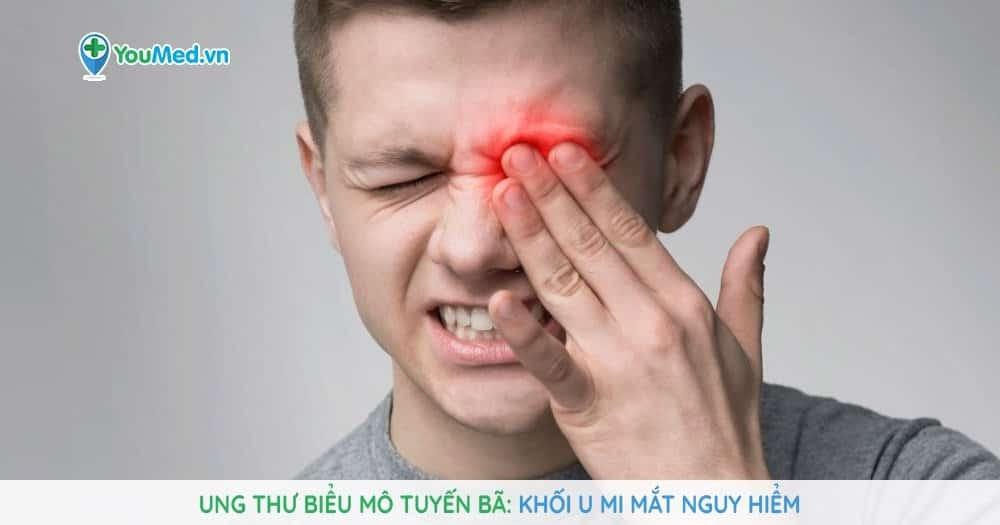Ung thư biểu mô tuyến bã: Khối u mi mắt chết người