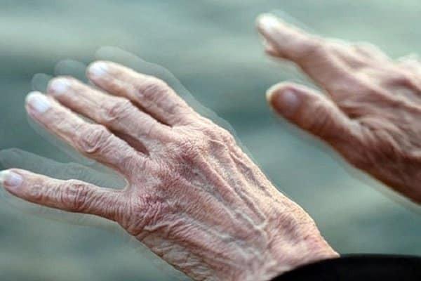 Dược liệu được dùng để chữa co giật trong bệnh Parkinson