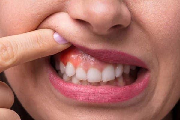 Ngậm súc miệng với cây Quả nổ giúp chữa viêm lợi
