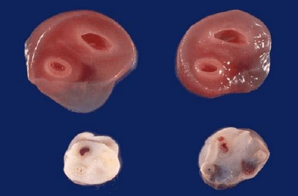 Hình ảnh dây rốn bình thường và dây rốn hai mạch máu