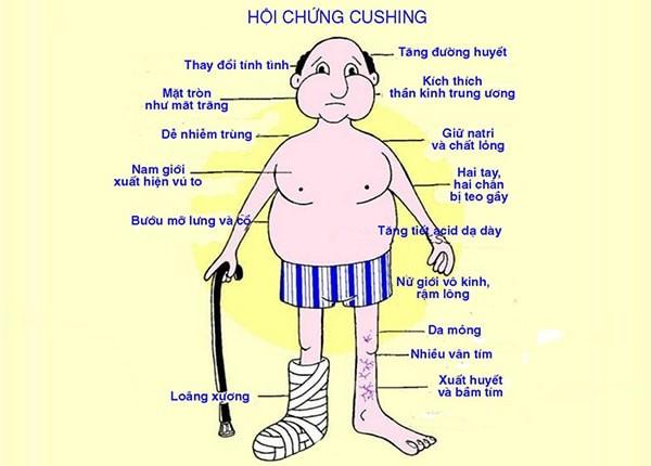Hình ảnh hội chứng Cushing