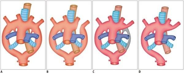 Động mạch chủ đôi