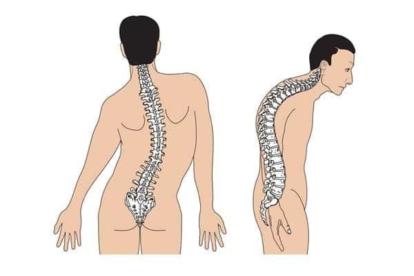 Vẹo cột sống là một trong các biến chứng