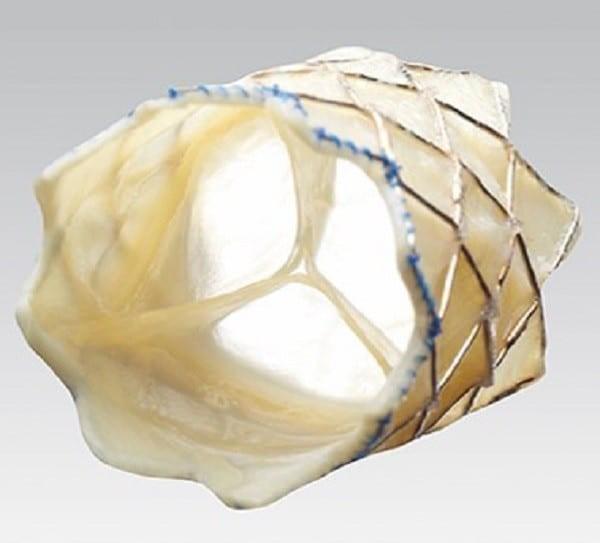 Thiểu sản van động mạch phổi