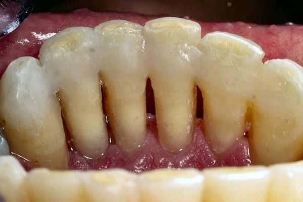 răng lung lay cần nẹp