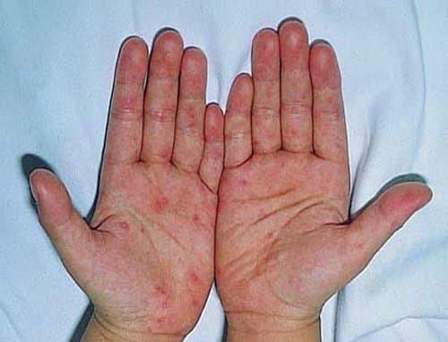 Lòng bàn tay son