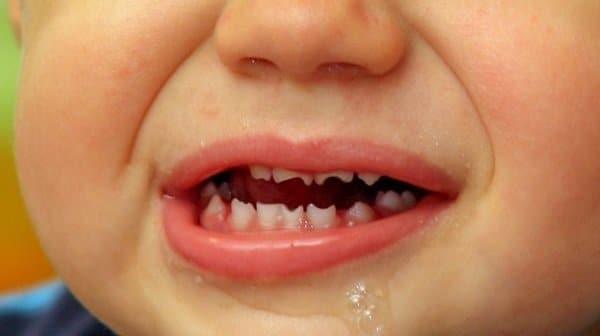 Răng hutchinson