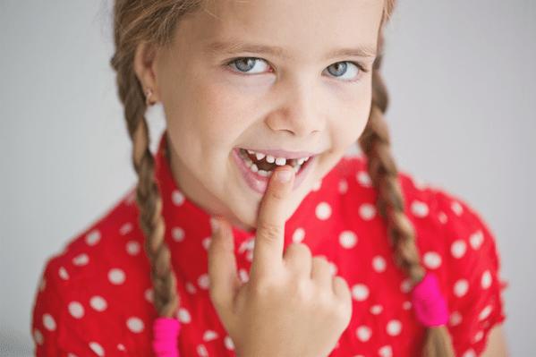 răng lung lay ở trẻ