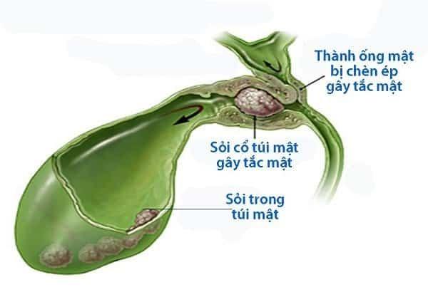 Sỏi là nguyên nhân chính gây viêm túi mật