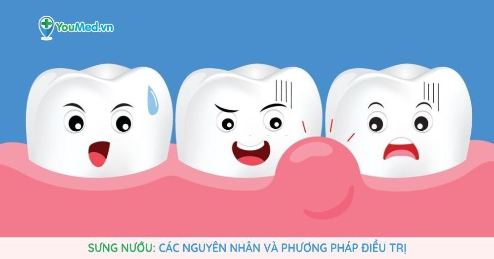 sung-nuou-nguyen-nhan-va-phuong-phap-dieu-tri