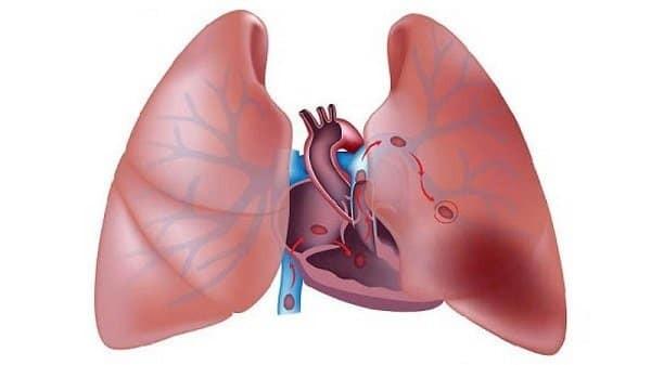 Thuyên tắc phổi là biến chứng nguy hiểm