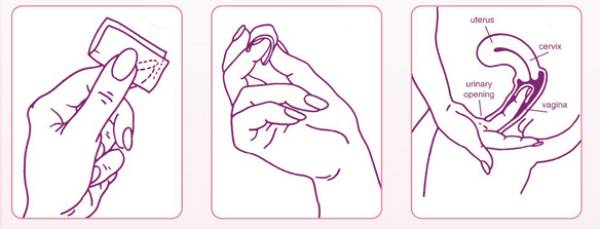 Cách đặt màng tránh thai