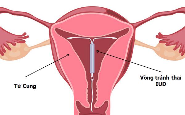vị trí của vòng trong tử cung
