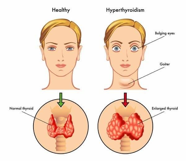Minh họa người bình thường (bên trái) với người bị suy giáp (bên phải), với các triệu chứng gồm lồi mắt, bướu cổ, phì đai tuyến giáp