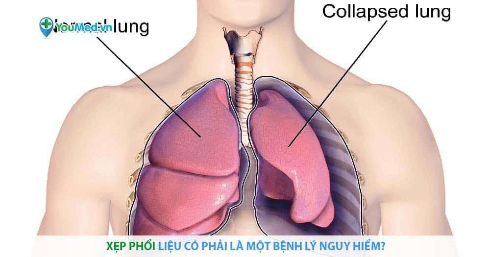 vXẹp phổi liệu có phải là một bệnh lý nguy hiểm?