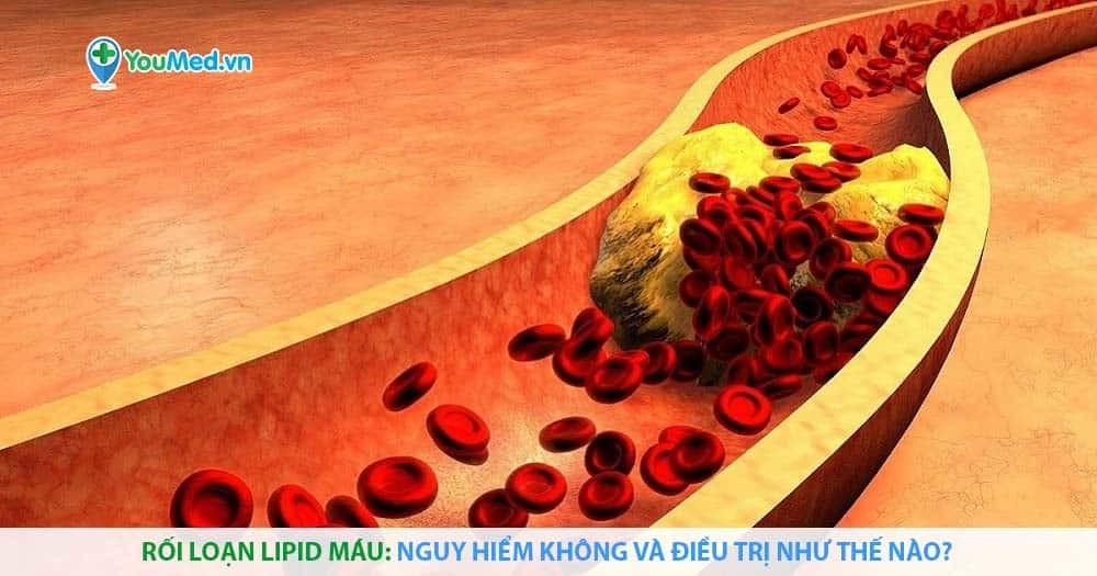 Rối loạn lipid máu: nguy hiểm không và điều trị như thế nào?
