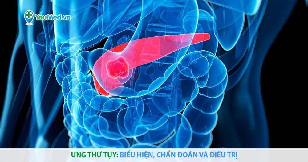 Ung thư tụy: Biểu hiện, chẩn đoán và điều trị