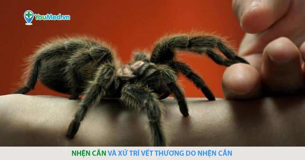 Nhện cắn và xử trí vết thương do nhện cắn