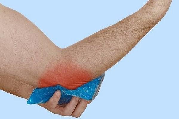 Bầm tím vùng gãy xương
