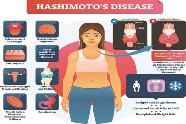 Bệnh Hashimoto - suy giáp có nên mang thai