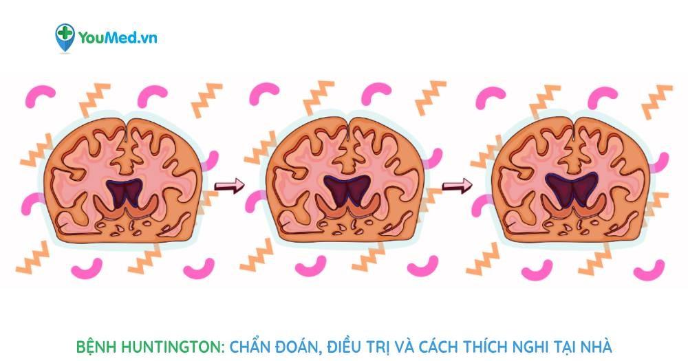Bệnh Huntington chẩn đoán, điều trị và cách thích nghi tại nhà