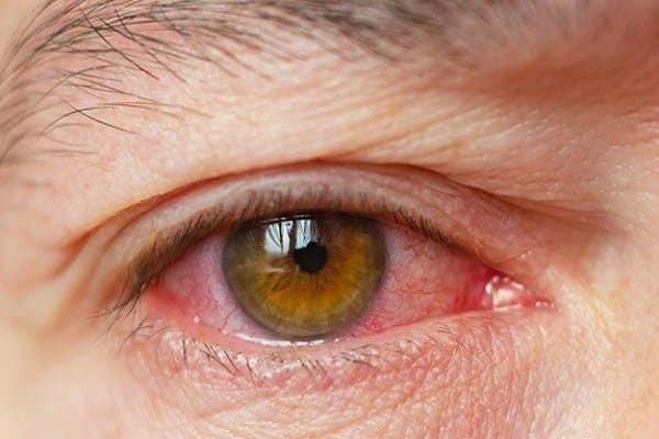 Bệnh khô mắt do thiếu hụt nước mắt