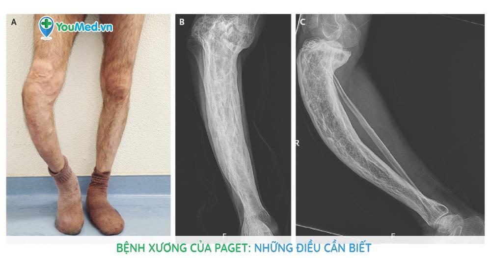 Bệnh xương của Paget: Nguyên nhân, triệu chứng và cách điều trị bệnh