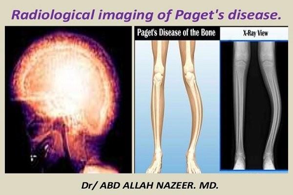 Bệnh xương của Paget