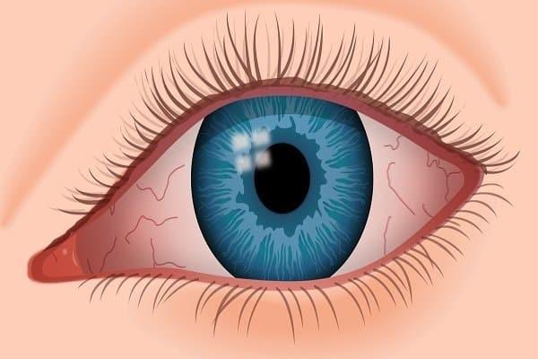 Biến chứng khô mắt