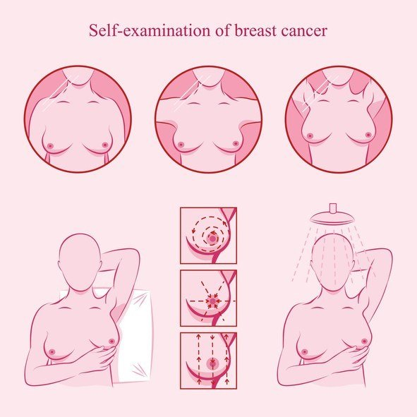 Self examination of breast cancer.