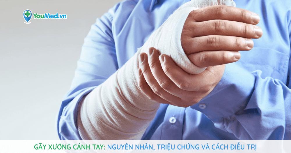 Gãy xương cánh tay: Nguyên nhân, triệu chứng và cách điều trị