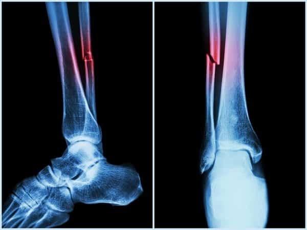 Gãy xương là biến chứng thường gặp trong bệnh xương của Paget