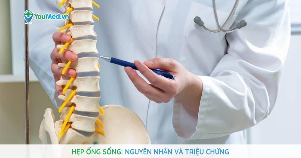 Hẹp ống sống nguyên nhân và triệu chứng