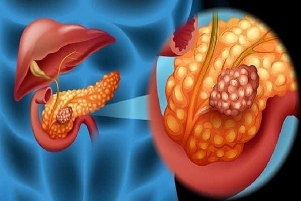 Hội chứng Zollinger - Ellison - nóng rát bao tử