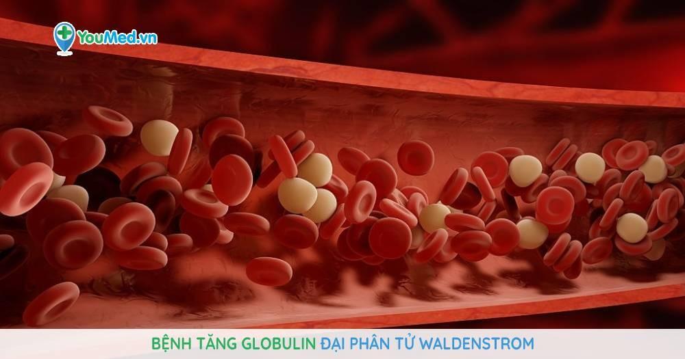 Bệnh tăng Globulin đại phân tử Waldenstrom