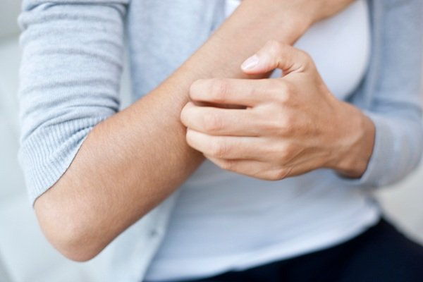 Ngứa là triệu chứng điển hình của bệnh viêm da thần kinh