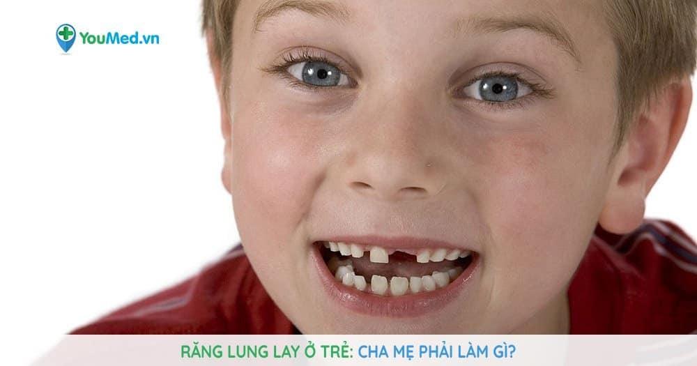 Cha mẹ phải làm gì khi trẻ có răng lung lay?