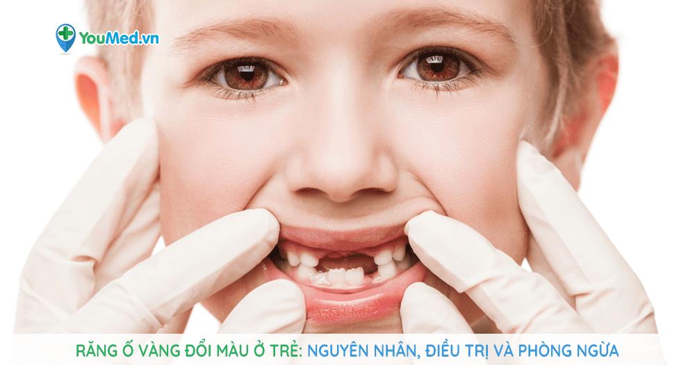 Răng ố vàng đổi màu ở trẻ: nguyên nhân, điều trị và phòng ngừa